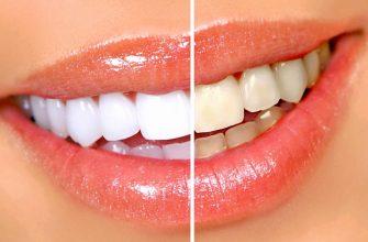 Как в домашних условиях отбелить зубы