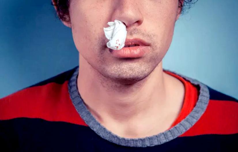 Как остановить кровь из носа у взрослого